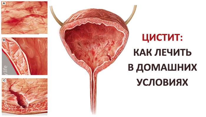 Таблетки от цистита у женщин быстрое лечение