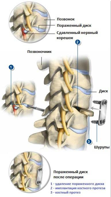 знаю куда оперативное лечение остеохондроза позвоночника нами говоря, советую