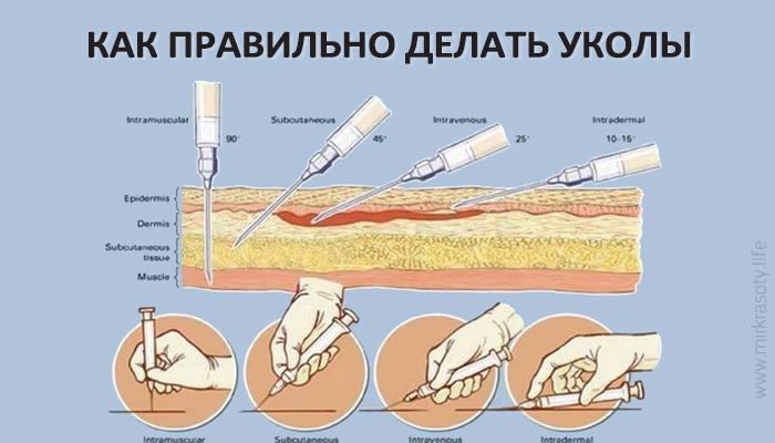 Как правильно делать укол? - пошаговая инструкция. Как сделать укол самому себе?