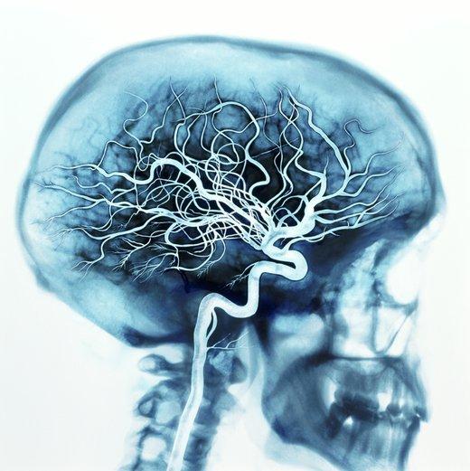 Чистка сосудов головного мозга в домашних условиях